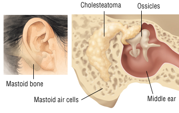 Ear Disorders Problems And Treatment Ent Florida