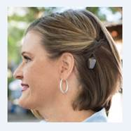 photo of woman wearing bone anchored hearing aid