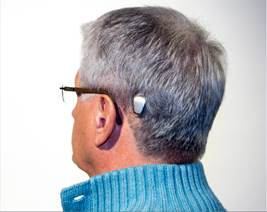 photo of man with hearing implant