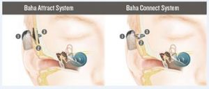 diagram of baha system